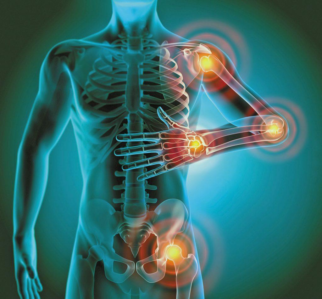 upala zglobova, osteoartritis, piknogenol